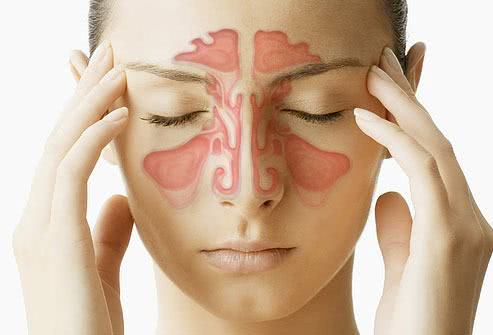 Chá para o tratamento da sinusite