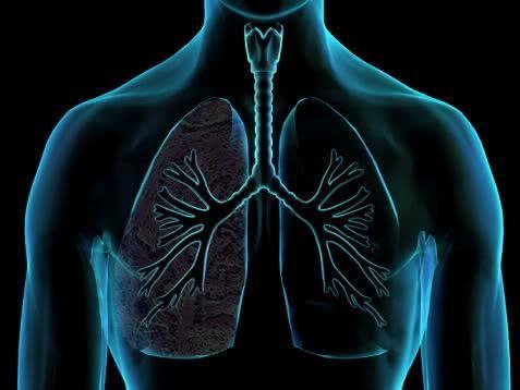Chás para ajudar no tratamento da bronquite