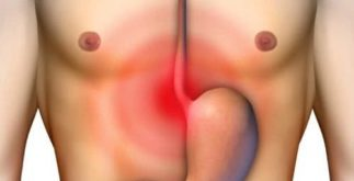 Chás para esofagite