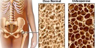 Chás para o tratamento da osteoporose