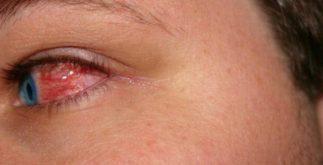 Chás indicados para tratar coceira nos olhos