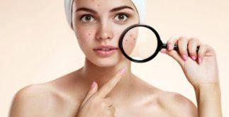 Conheça os chás capazes de remover manchas da pele