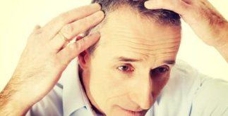 Receitas de chás para tratar queda de cabelo e calvície