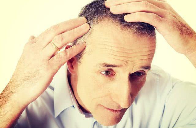 Recetas de té para tratar la caída del cabello y la calvicie