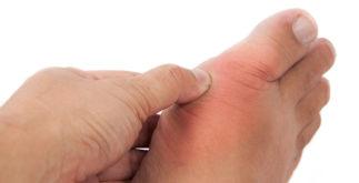 Ácido úrico alto: chás que ajudam no tratamento