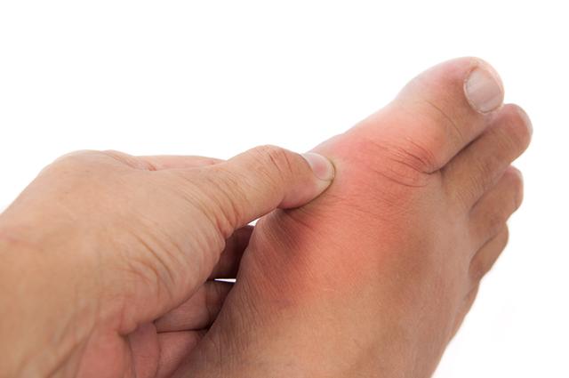 Articulação do pé inchada